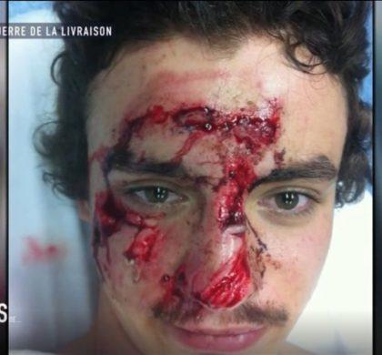 Regardez pourquoi ce jeune homme a le visage en sang !